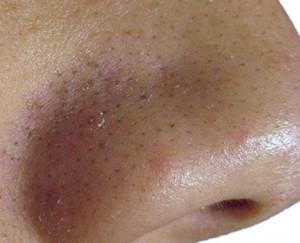 How do i get rid of blackheads naturally