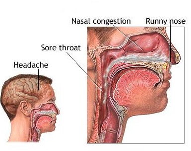 How To Treat Nasal Infection Naturally
