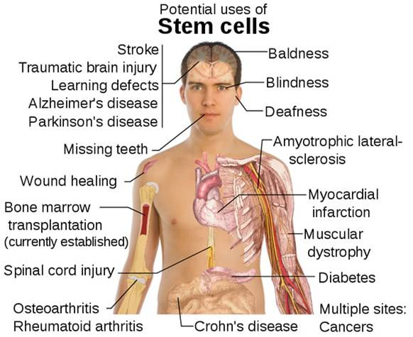 stem cell possibilities Stem cell research has exciting possibilities, but we have a long way to go in the journey from basic research to bedside cures in addition, stem cell research may not be the only way to cure the diseases often listed as targets for future stem cell therapies.